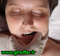 orofacial-facilitation-tratment-method