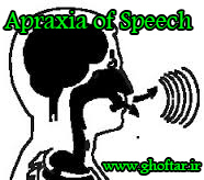 speech-apraxia