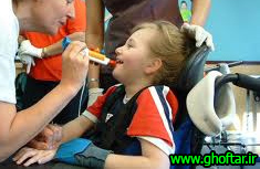 speech-rehabilitation-in-cerebral-palsy